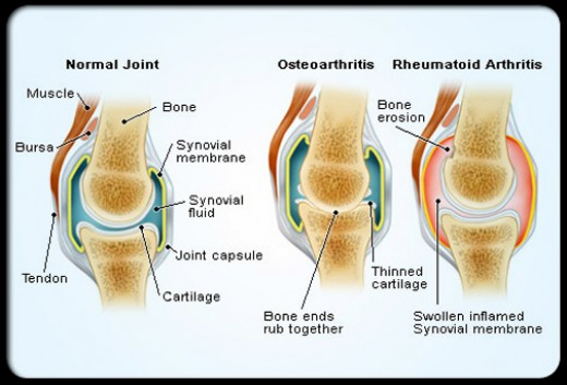 Arthritis Types Symptoms and Treatment | hubpages