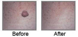 Alternative wart removal home remedies for Fish eye wart