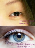 Asian Eyelid Surgery: Everything About Asian Blepharoplasty