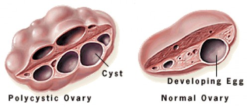 multiple ovarian cysts