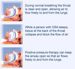 All About Sleep Apnea and Sleep Cycle
