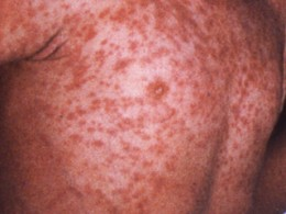 typical measles rash