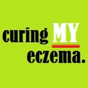 Curing My Eczema profile image