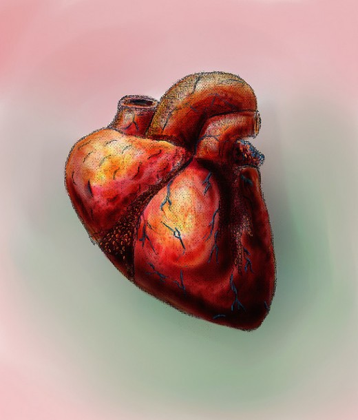 A high level of cholesterol can lead to heart attack.