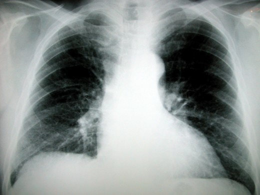 Mitra valve prolapse syndrome can bring on breathlessness and affect lung capacity over time