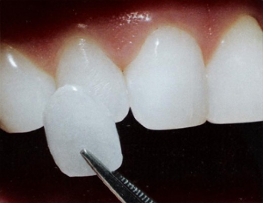 Veneers - Do they remove too much tooth Veneers