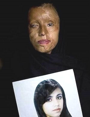 Another beautiful girl holds her photo. She is a victim of Sharia Law. Acid was thrown in her face for some minor infringement.