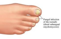 You can Find a Useful Remedy for Nail Fungus
