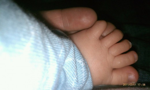 Stinky toes