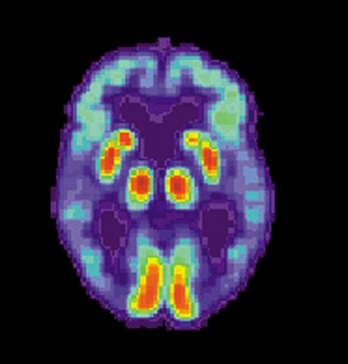 PET Scan of a patient with Alzheimer's Disease