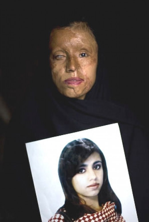 Beatuiful young woman after acid was thrown in her face.