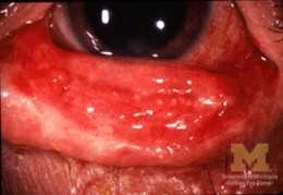 Homeopathy can treat conjunctivitis effectively