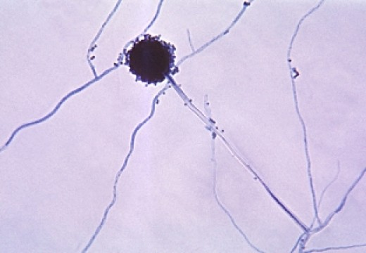 Aspergillus niger can be both helpful and harmful.