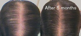Female hair loss is characterised by an overall thinning of the hair over the top of the scalp