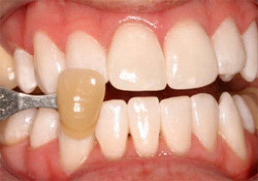 How To Remove Fluoride Stains From Teeth Naturally