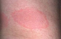 Lupus rash on skin. This is the kind of rash I had when I was diagnnosed