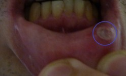 Canker Sores Treatment - Aspirin Paste