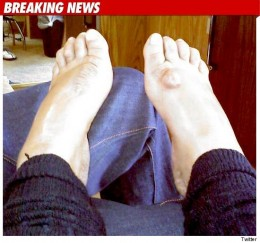Wendy Williams posts a picture of her bruised and bloated feet. Is this a bid to garner sympathy votes for herself?