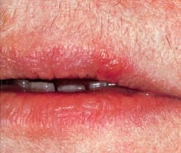 Herpex simplex infection of mouth.