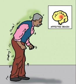 Propulsive gait