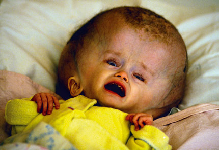 abandoned baby in Semipalatinsk, Russias nuclear test site