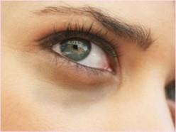 Skin care: How to reduce black circles around eyes
