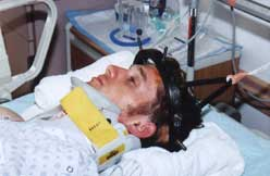 Patients endure halo traction for six weeks before the broken vertebrae repairs itself. During this time, patients are briefly rolled every three hours to help ward of pressure sores. The remainder of that time is spent looking at the ceiling.