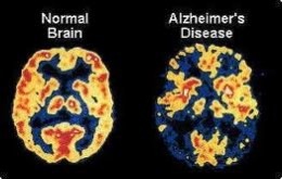 Comparison of Brains with and without Alzheiemer's Disease