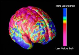 A brain scan of an adolescent with Schizophrenia