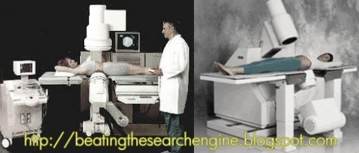 Extracorporeal shock wave lithotripsy or Shock Wave Therapy for Kidney Stones