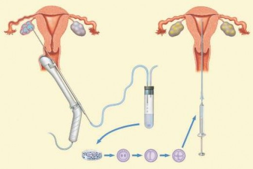 Mature eggs are suctioned from the ovaries by means of a long needle before being inseminated and returned to the uterus via catheter. These day surgeries are usually done in your clinic under local anesthetic.