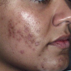 5 Easy Ways to Remove Acne Scars Naturally