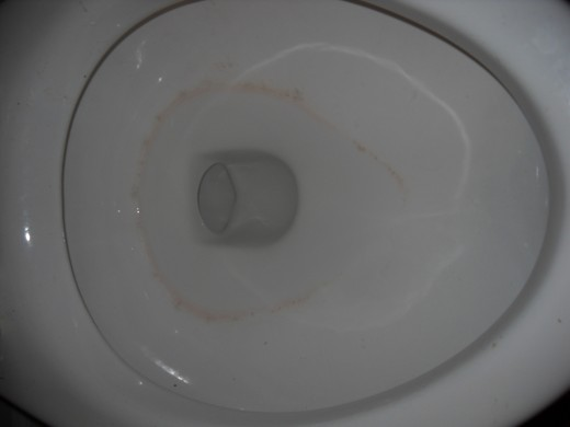 Toilet bowl with ring.