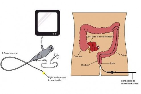 Diagram of A Colonoscopy