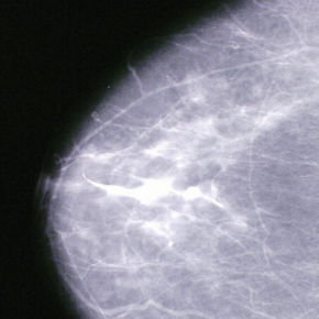 Mammogram Picture Showing Breast Tissue.