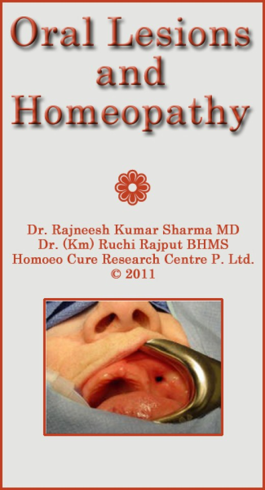Dr Rajneesh Sharma provides extensive information and photographs depicting all forms of oral disease, growths and lesions with corresponding homeopathic remedies.