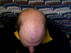 Balding: Fear of Falling (Follicles)