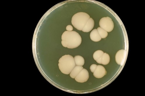A picture of the Candida Albicans culture. The root cause of ALL yeast infections in the human body!