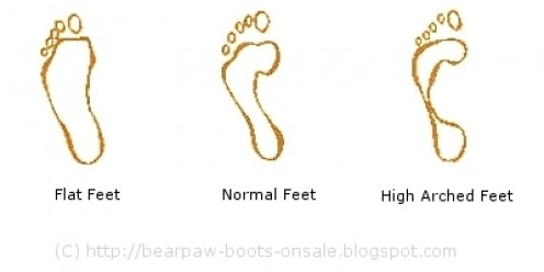 Wet Foot Test-Types of Feet