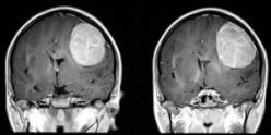 Brain Tumour Symptoms