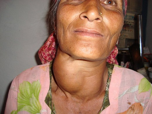 Goiter is more frequently caused due to iodine deficiency