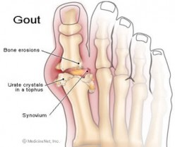 Uric Acid & Gout, Its Symptoms, Prevention and Treatment