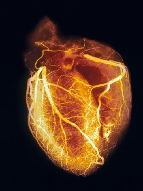 An angiogram of a healthy heart showing blood vessels in sharp detail.