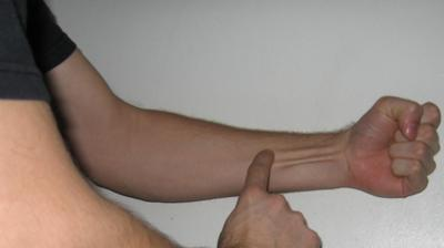 Tendons are in our arm, ankles, and other places. Tendinitis is inflammation of the tendons.