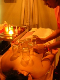 Fire Cupping (Bentosa) Heals Chronic Aches