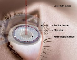 Post Operative Care after Lasik Surgery