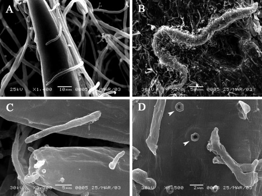 Scanning electron micrographs on a nematode hunted by the shaggy ink cap hyphae