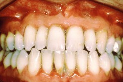 How to Avoid Gum Disease Gingivitis and Periodontitis