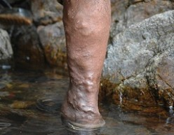 Varicose veins photographed by Wikimedia Commons user Jackerhack.