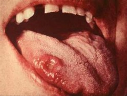 Syphilis Rash Symptoms and Treatments